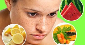 16 mẹo chữa cháy nắng và sạm da bằng liệu pháp tự nhiên
