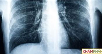 Bệnh nhân đầu tiên trên thế giới phải ghép phổi do hút vape