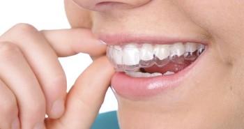 Những điều chưa biết về niềng răng trong suốt Invisalign