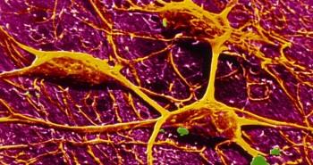 Tế bào thần kinh nhân tạo nhanh hơn não người